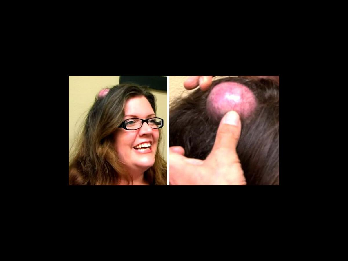 Watch if you dare: Woman gets giant CYST on head popped on live TV
