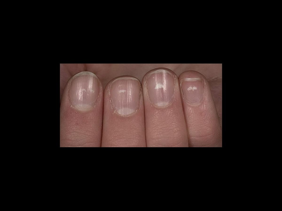 What do those white lines on your fingernails mean? | Nova 969