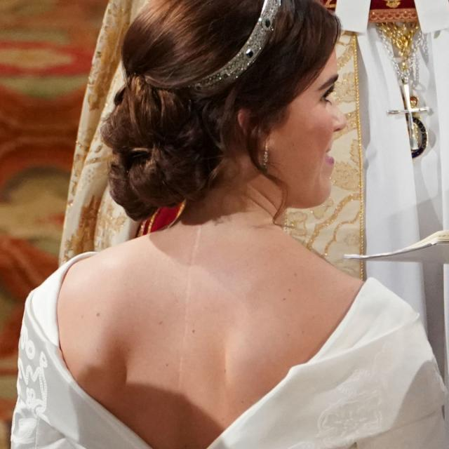 Why Eugenie wanted to show her scar on her wedding day