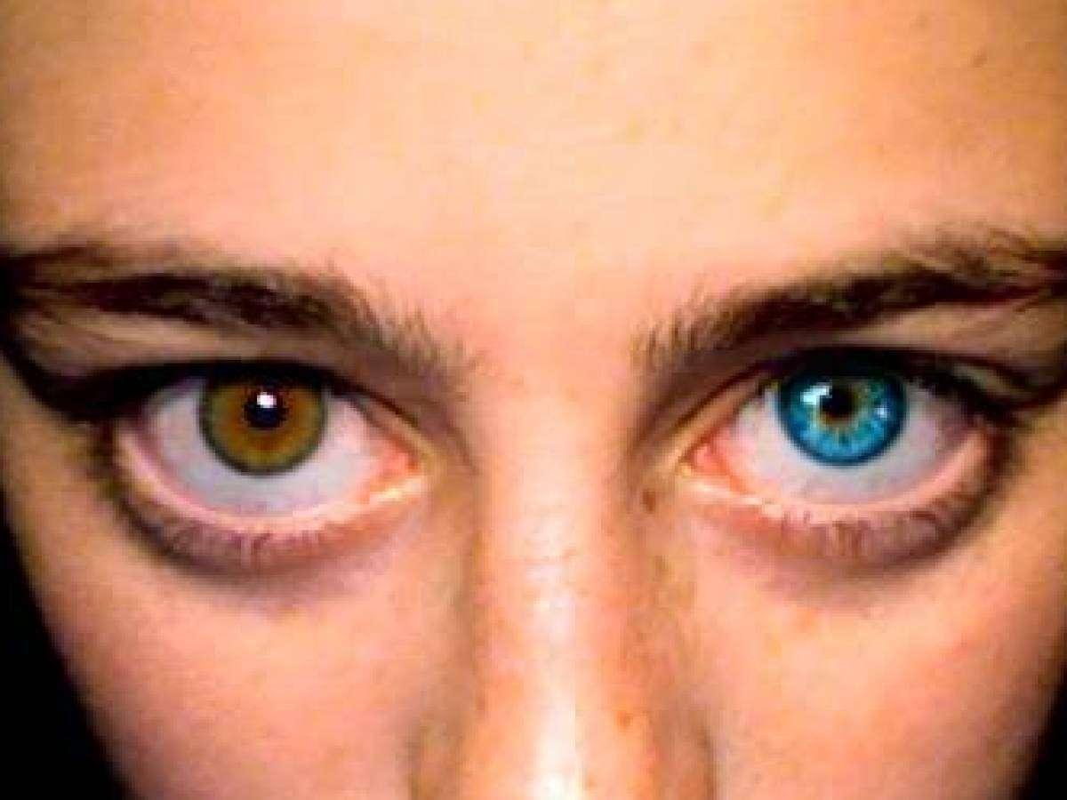 hetero_eyes.jpg?itok=HPu-kOu4