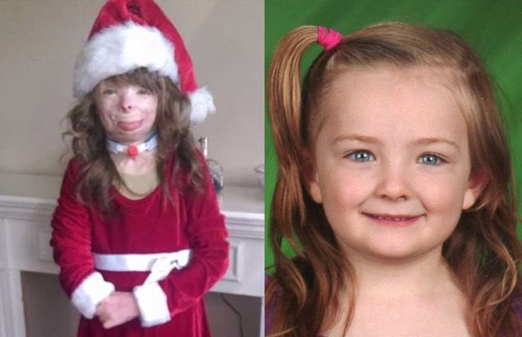 This girl's entire family got killed in an arson attack. What she ...